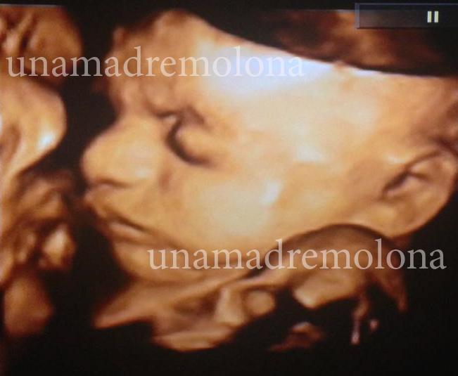 Eco 4 D Y La Nariz De Claudia Una Madre Molona
